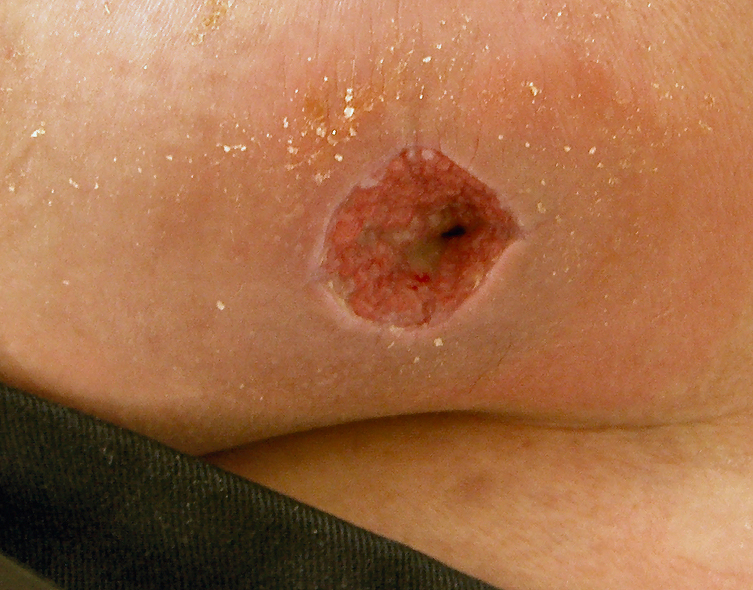 silver dressings in treatment of mrsa in wounds Antibacterial properties and reduction of mrsa biofilm with a dressing combining polu-absorbent fibres and a silver matrix these clinical data support that the tested dressing is a credible therapeutic alternative for the management of chronic wounds at risk of infection with inflammatory signs suggesting heavy bacterial.